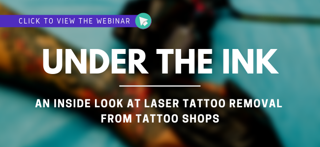 State Regulations for Laser Tattoo Removal