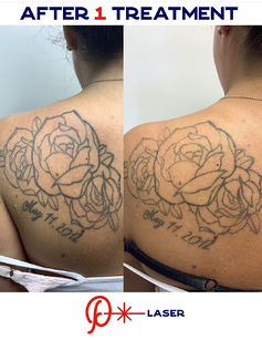 laser tattoo removal easton pa precision laser