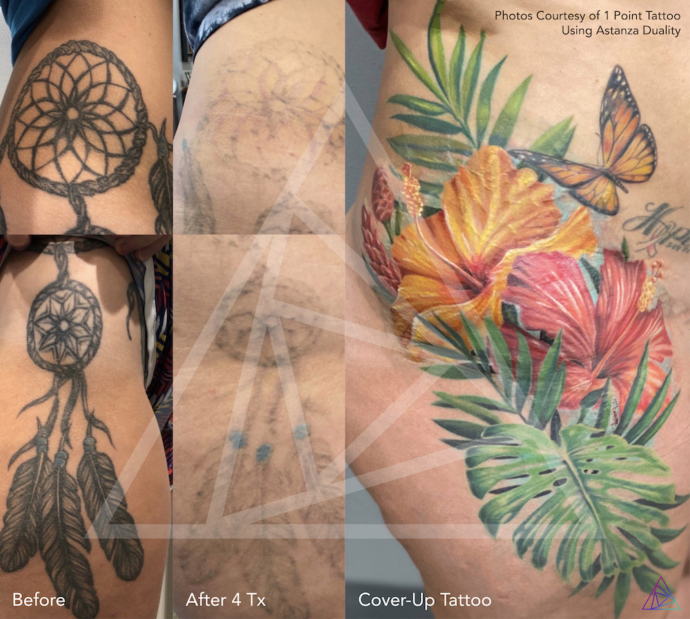 1 Point Tattoo Before and after laser tattoo removal