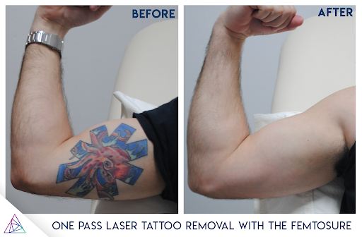 The Fastest Laser Tattoo Removal Laser EVER - The FemtoSure Laser by ...