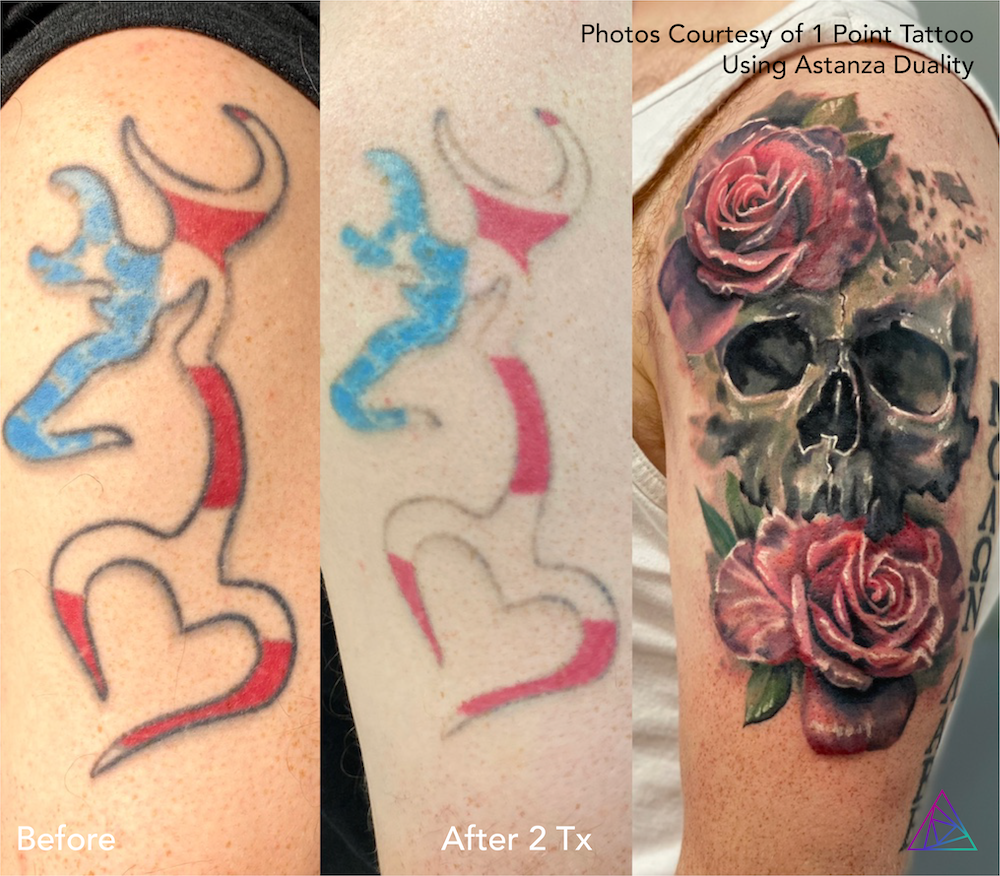 Astanza Laser Aesthetic Before and After Photos Contest