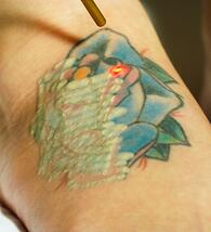 Removing Stubborn Ink Colors - Astanza Laser Tattoo Removal