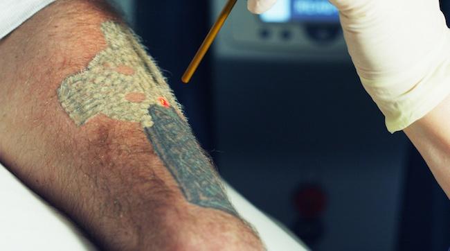 Tattoo_Removal_8_reduced.jpg