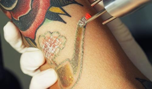 Tattoo Removal 3 web.jpg