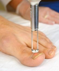 toenail treatment web.jpg