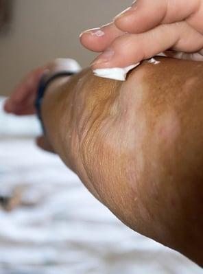 Laser Tattoo Removal Alternatives At-Home