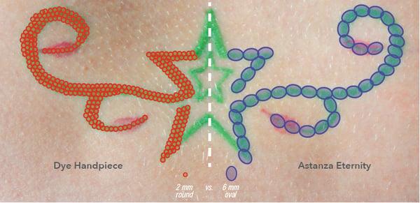 Tattoo-Removal-Laser-Treatment