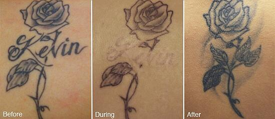 7 most frequently asked questions from tattoo removal patients for Tattoo turned black after laser