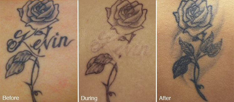 tattoo removal for cover up tattoo