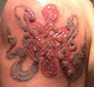 blisters from laser tattoo removal