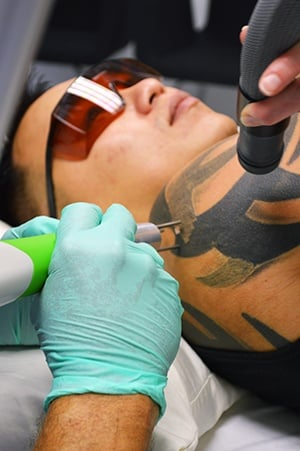 Does tattoo removal hurt?