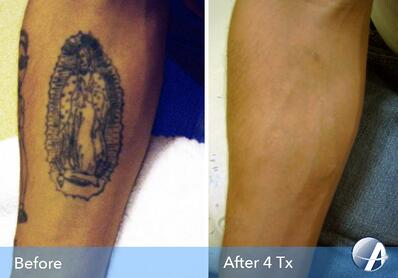 Tattoo Removal Before & After Photos from Astanza