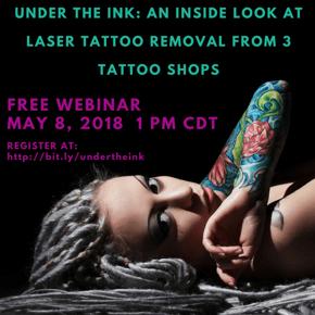 Tattoo Removal Webinar