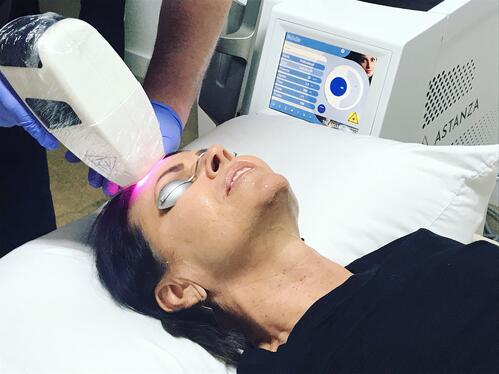 Vascular Treatment with the Astanza ReSmooth