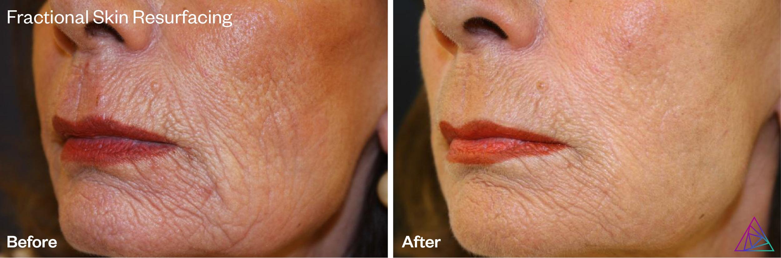 Fractional Skin Resurfacing by Astanza Laser