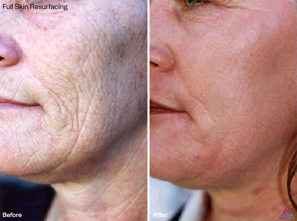 DermaBlate-BA_full-skin-resurfacing