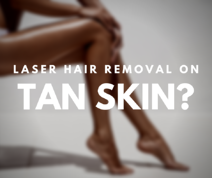 Does Laser Hair Removal work on tan skin_
