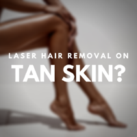 Does laser hair removal really work on tan skin_