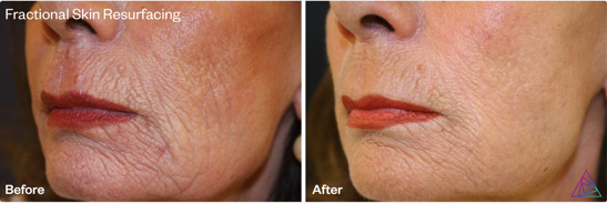 Fractional Skin Resurfacing with the Astanza DermaBlate