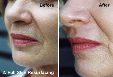 Full Skin Resurfacing - Astanza DermaBlate 2