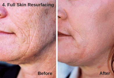Full Skin Resurfacing - Astanza DermaBlate 4