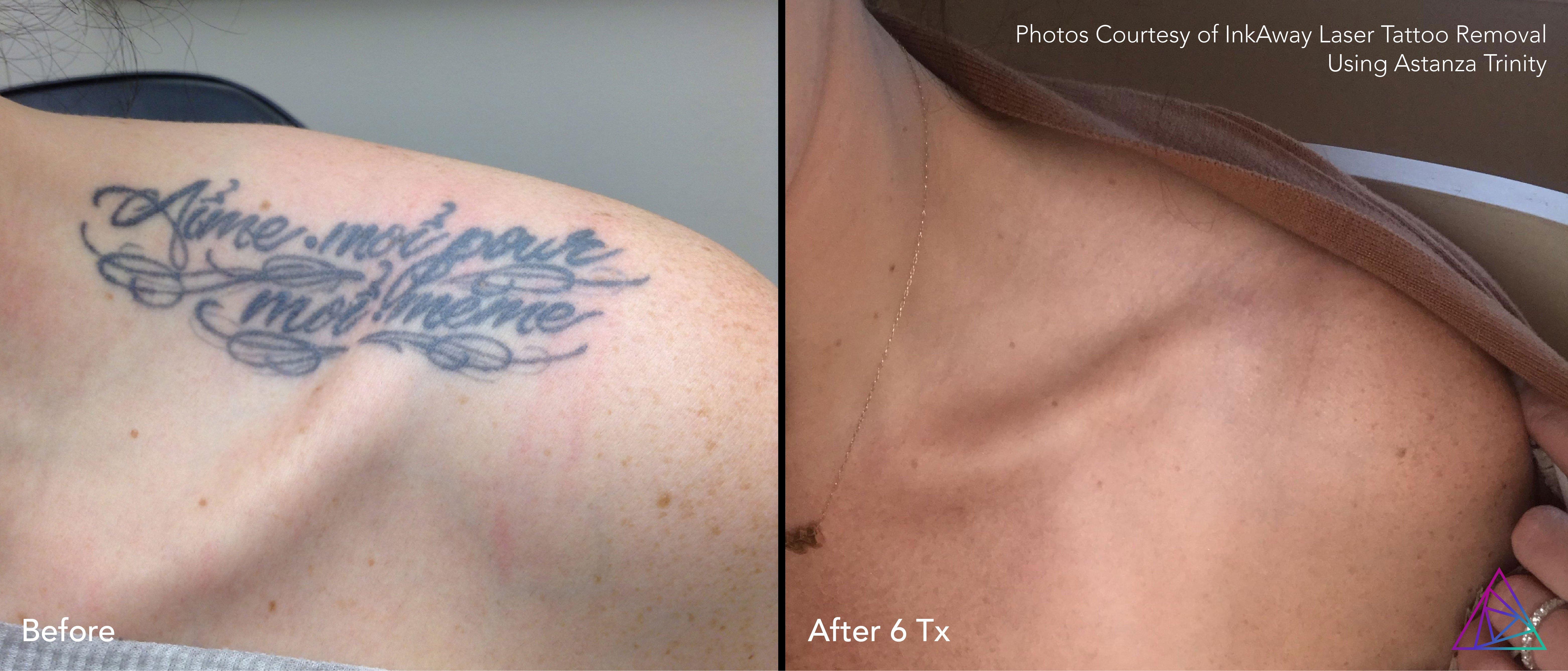 InkAway-Laser-Tattoo-Removal-B&A