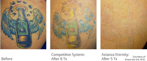 Laser Tattoo Removal with the Astanza Trinity