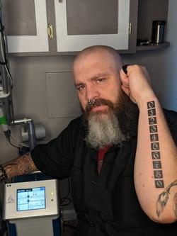 Laser tattoo removal idaho falls 404 laser tattoo removal astanza