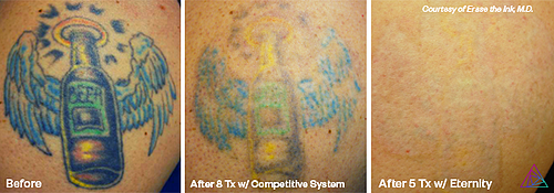 Laser Tattoo Removal by Astanza Laser