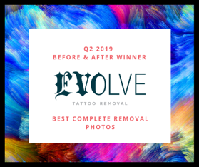 Q2 2019 Before & after winner - Best Compete Tattoo Removal-1