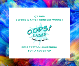 Q3 2019 Before and After winner - Best tattoo lightening for a cover-up