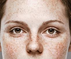 Regulations for removing natural pigmentation