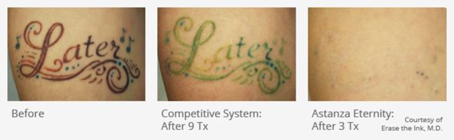 Removing Stubborn Ink - Astanza Laser Tattoo Removal