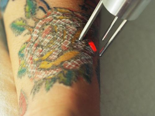 Tattoo Removal 2 web.jpg