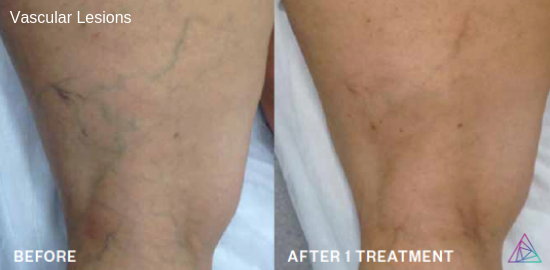 Vascular Treatment with the Astanza EthereaMX