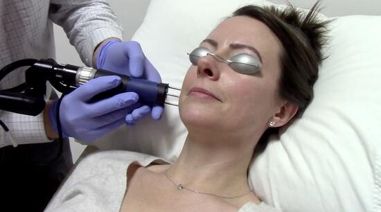 Celebrity Peel with the Astanza DermaBlate