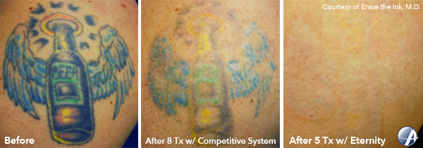 Beer-Tattoo-Removal-Before-After