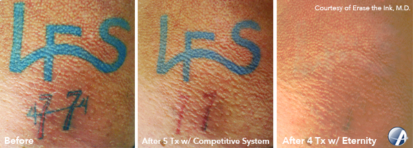 LFS-Tattoo-Removal-Photo
