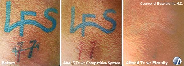 LFS-Tattoo-Removal-Photo
