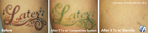 Later-Tattoo-Removal-Photo