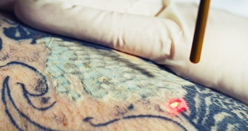 All About the R20 Method of Laser Tattoo Removal