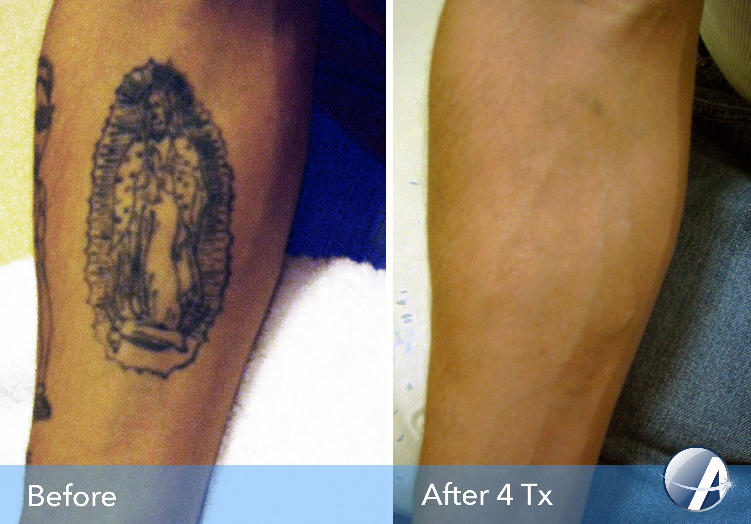 100 tattoo removal dallas tx new way gone laser for Dallas tattoo removal clinic reviews